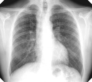 an x-ray showing the lungs being affected with Silicosis