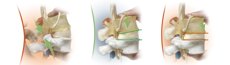 spine models, patient edcuation