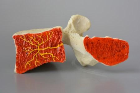 Basivertebral nerve lumbar spine model with cancellous and basivertebral Nerve
