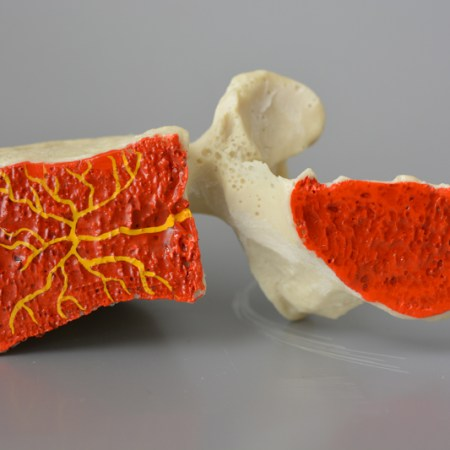 Basivertebral nerve lumbar spine model with cancellous and basivertebral Nerve