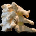 cervical spinal stenosis