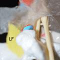 Ligamentum Flavum Option