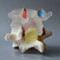 Spondylolytic spondylolisthesis with radial and circumferential tears, which can be used to visualize nuclear structures
