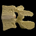 A range of spine models including the Medical Branch, Midsagittal, Multilevel (Sacrum-L5-L4), Stenosis Lumbar, Professional CxH and a dual/triple stand