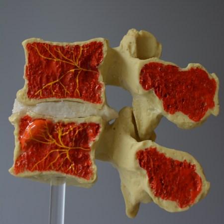 basivertebral nerve, modic model