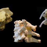 Cervical Models