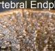 Endplate, intervertebral disc