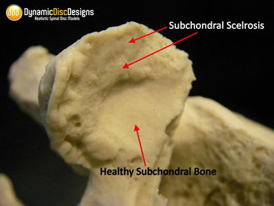 osteoarthritis model, spine, facet, disc height loss