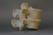 Spinal Stenosis Care Aided by 3D Models