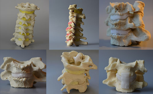 cervical spine models