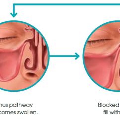 is sinusitis dangerous  [ 1872 x 582 Pixel ]