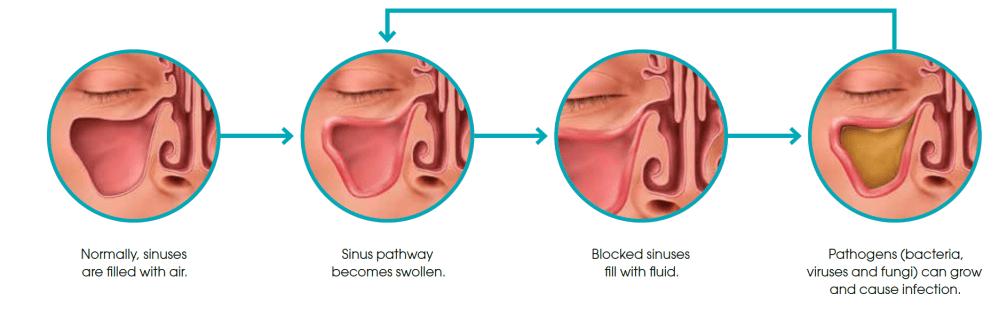 medium resolution of is sinusitis dangerous