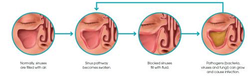 small resolution of is sinusitis dangerous