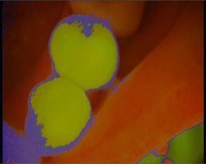 fioletowa otoczka świadczy o obecności płytki nazębnej