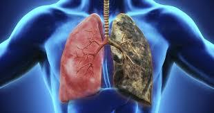 asmathic smokers
