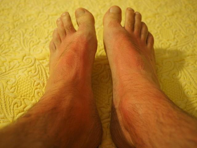 10 Sunburn causes and treatments