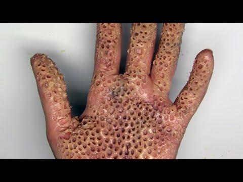 ТРИПОФОБИЯ - едно от най-шокиращите заболявания, причинено от насекоми (видео)