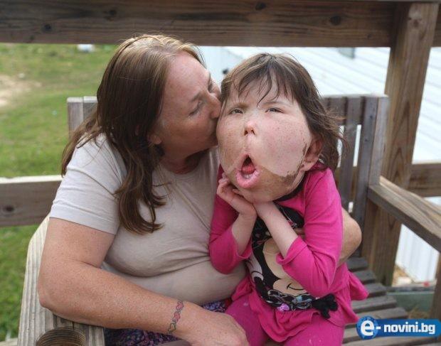 Момиченце страда от най-рядката болест