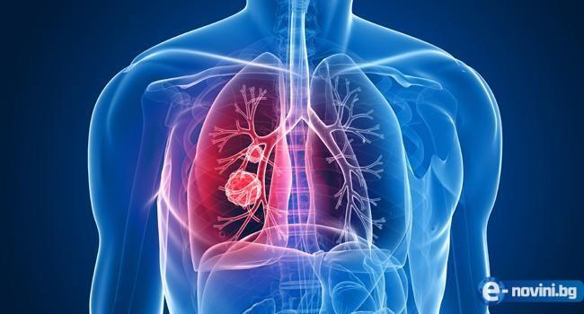 ВНИМАНИЕ! 8 изненадващи симптома на рак