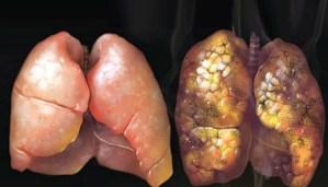 Как да изчистим дробовете си от никотина - изпитана рецепта!