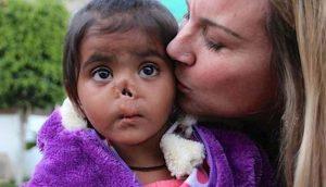 Жена осиновила момиче без нос което открила на бунището. Днес тя е неузнаваема!