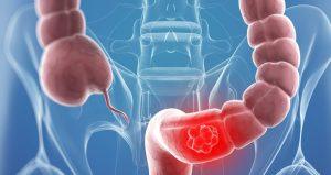 Ракът на дебелото черво изпраща сигнали 2 години по-рано