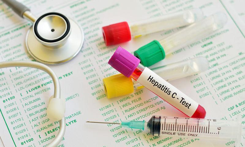 «Επιτακτικός ο έλεγχος για ηπατίτιδα C σε όσους έχουν γεννηθεί μεταξύ 1945-1980»
