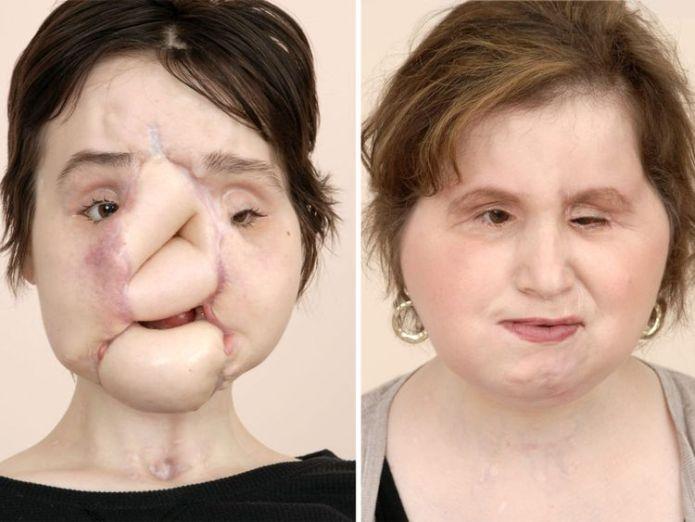 Frau Stubblefield wurde vor ihrer Transplantation mehreren Operationen unterzogen: Cleveland Clinic