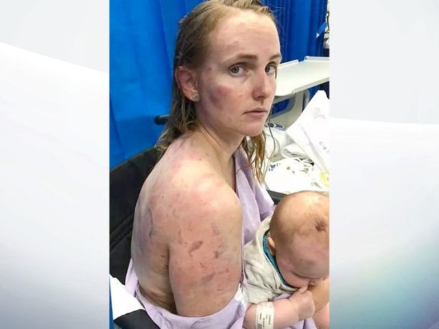 Fiona Simpson was left covered in bruises. Pic: Facebook