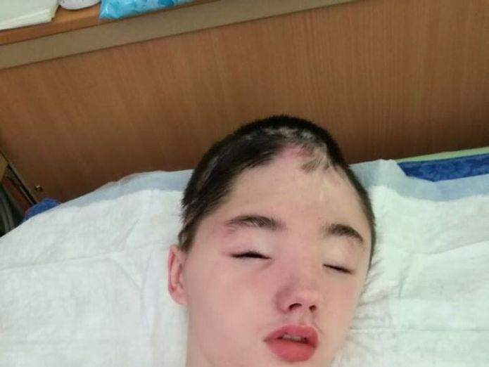 Vanya Krapivin, 16 ans, a perdu la majeure partie de son crâne frontal lors de l'attaque