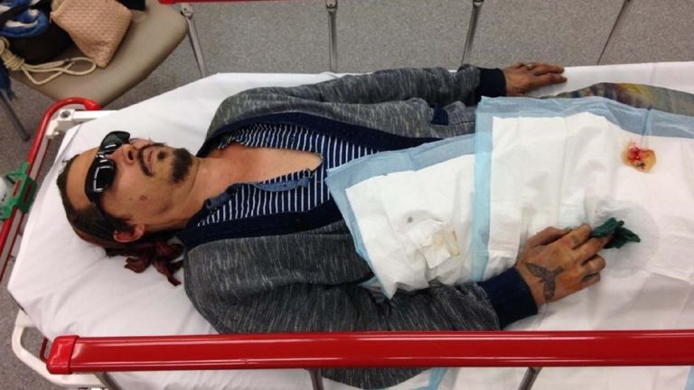 A picture from Johnny Depp's lawyers shows him in hospital after Amber Heard allegedly severed his finger with a vodka bottle and burnt his cheek with a cigarette
