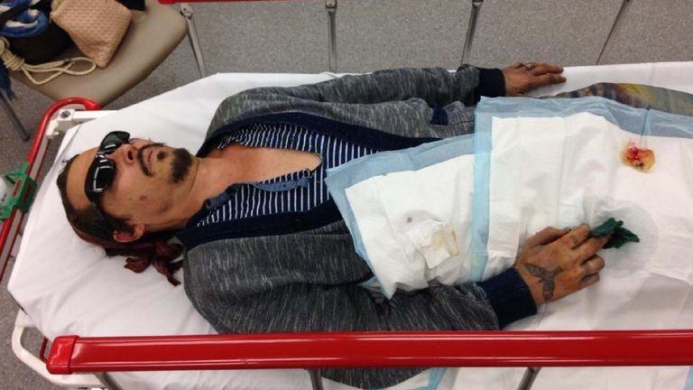 Una imagen de los abogados de Johnny Depp lo muestra en el hospital después de que Amber Heard supuestamente se cortó el dedo con una botella de vodka.