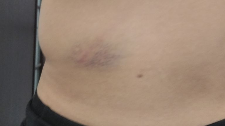 Mr Kviatko had bruising on his back from where police beat him