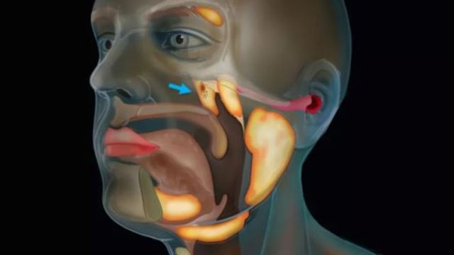 The gland is situated deep in the upper part of the throat Pic: © The Netherlands Cancer Institute