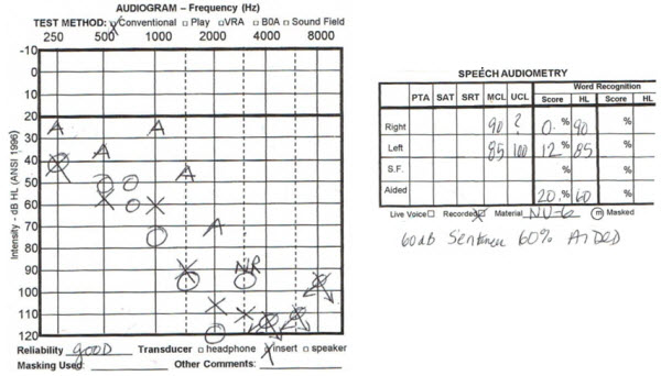 Asymmetrical Sensorineural Hearing Loss Fitting