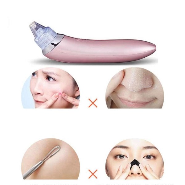 Facial-Blackhead-Remover-Dead-Skin-font-b-Acne-b-font-Pore-Peeling-Device-Cleaning-Skin-Tool