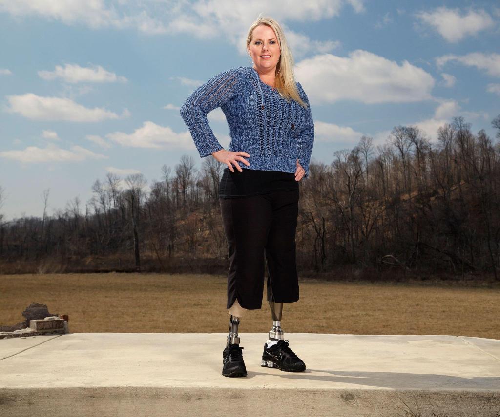 Stephanie Decker motivational speaker, amputee