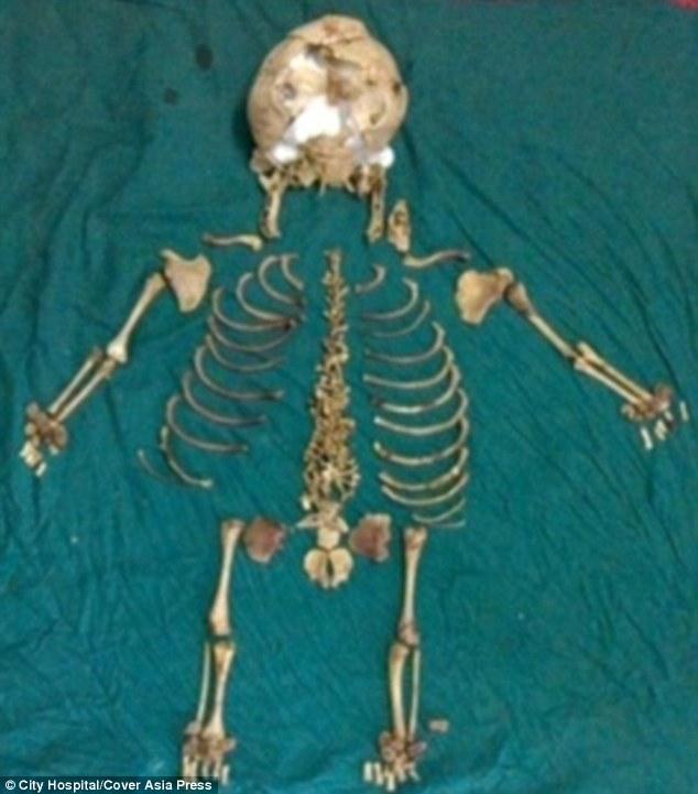Kantabai Thakre skeleton