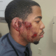 St. Ann Police Admit To Beating & Arresting Wrong Person After Chase