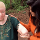 "Albino Children From East Africa ""Tanzania"" Are Getting Limbs Cut Off As Good Luck Charms"
