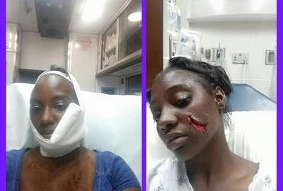 face slashed