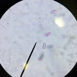 170208-sarcoscypha-austriaca-scarlet-elfcup-1