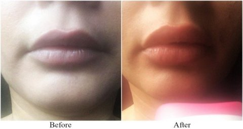 Get Natural Affordable Safer Plump Lips Within Minutes, Juvalips