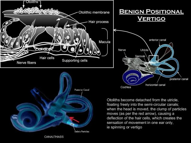 Diagram of Benign Positional Vertigo