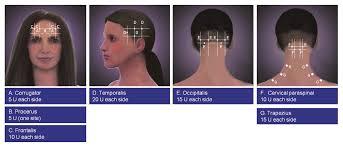 botox for migraine how often