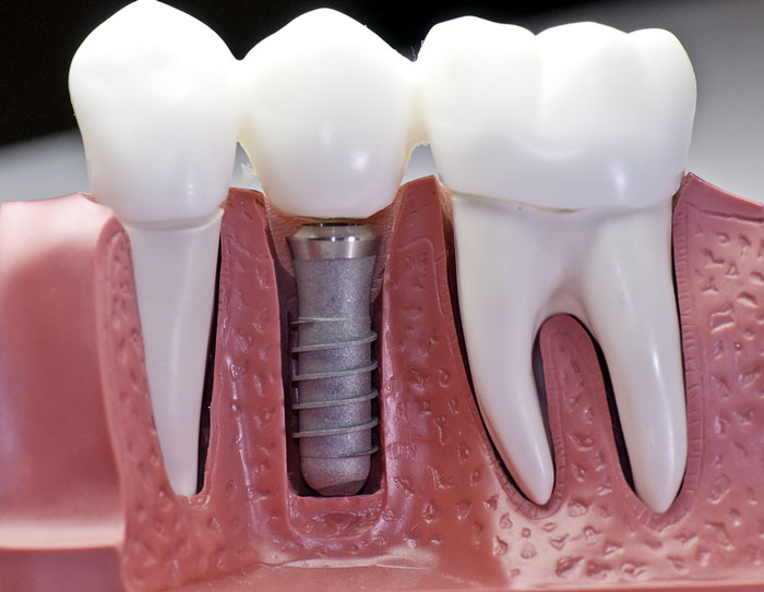Dental Implants: Why You Need Them