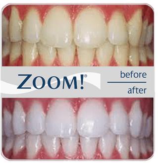 zoom whitening