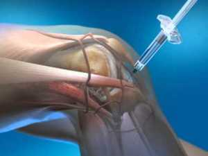injected-knee