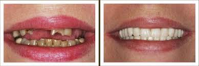 denture before and after