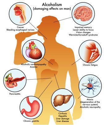 Alcoholism: Ayurvedic Treatment, Medicines, Remedies | Easy
